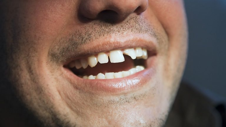 Damaged Teeth How To Find A Smile